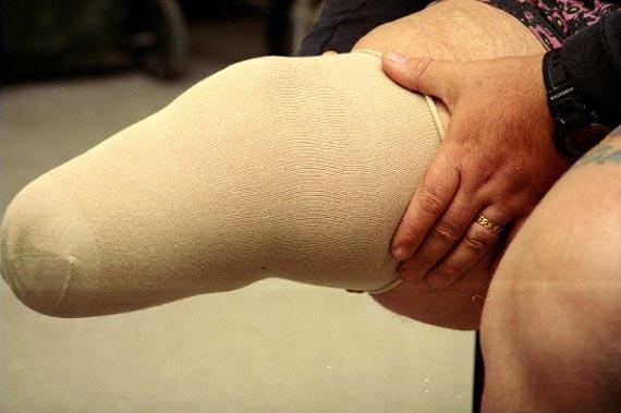 Stump Sock